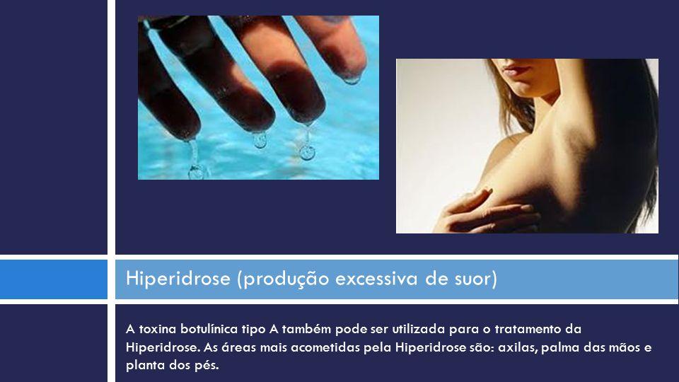 Hiperidrose (produção excessiva de suor)