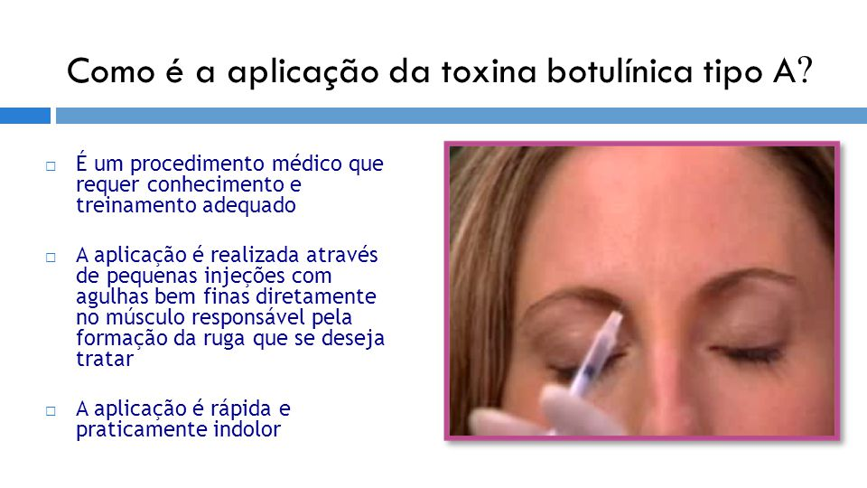 Como é a aplicação da toxina botulínica tipo A