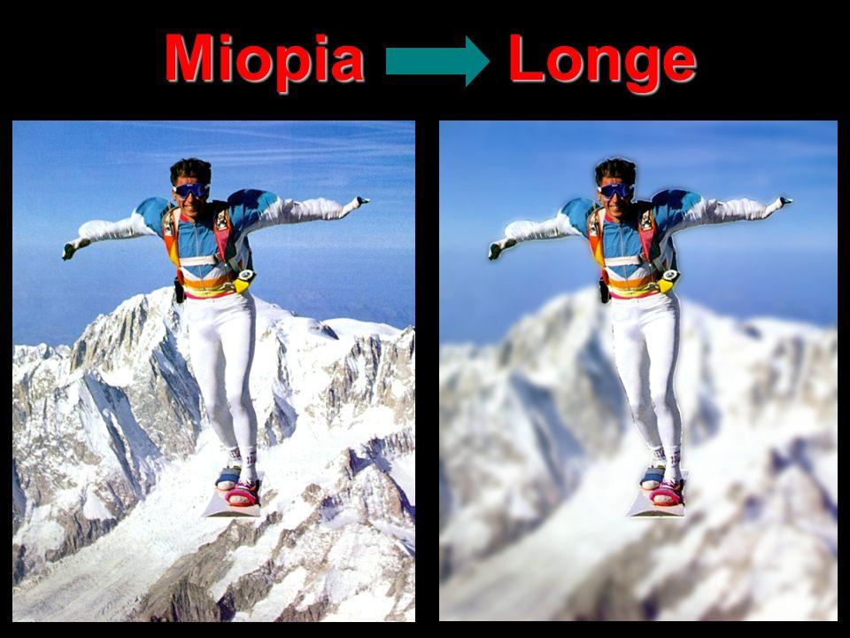 Miopia Longe