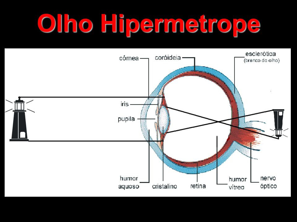 Olho Hipermetrope
