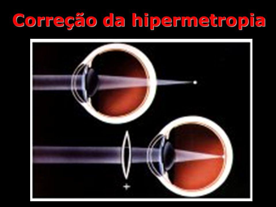 Correção da hipermetropia