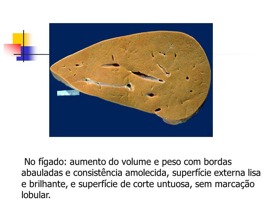 No fígado: aumento do volume e peso com bordas abauladas e consistência amolecida, superfície externa lisa e brilhante, e superfície de corte untuosa, sem marcação lobular.