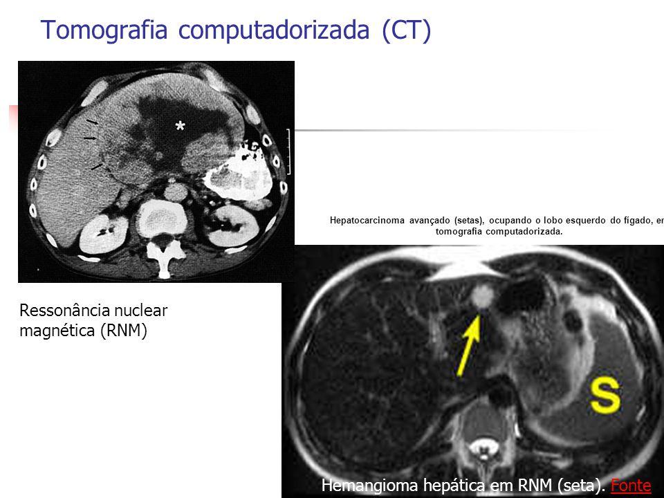 Tomografia computadorizada (CT)
