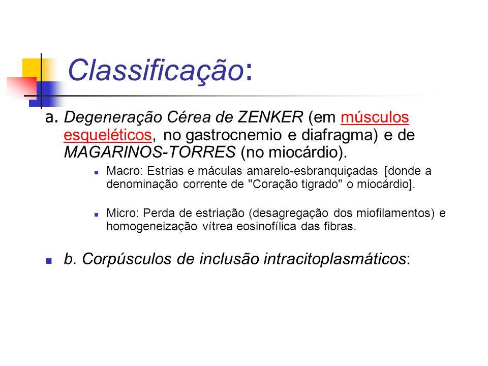 Classificação: a. Degeneração Cérea de ZENKER (em músculos esqueléticos, no gastrocnemio e diafragma) e de MAGARINOS-TORRES (no miocárdio).