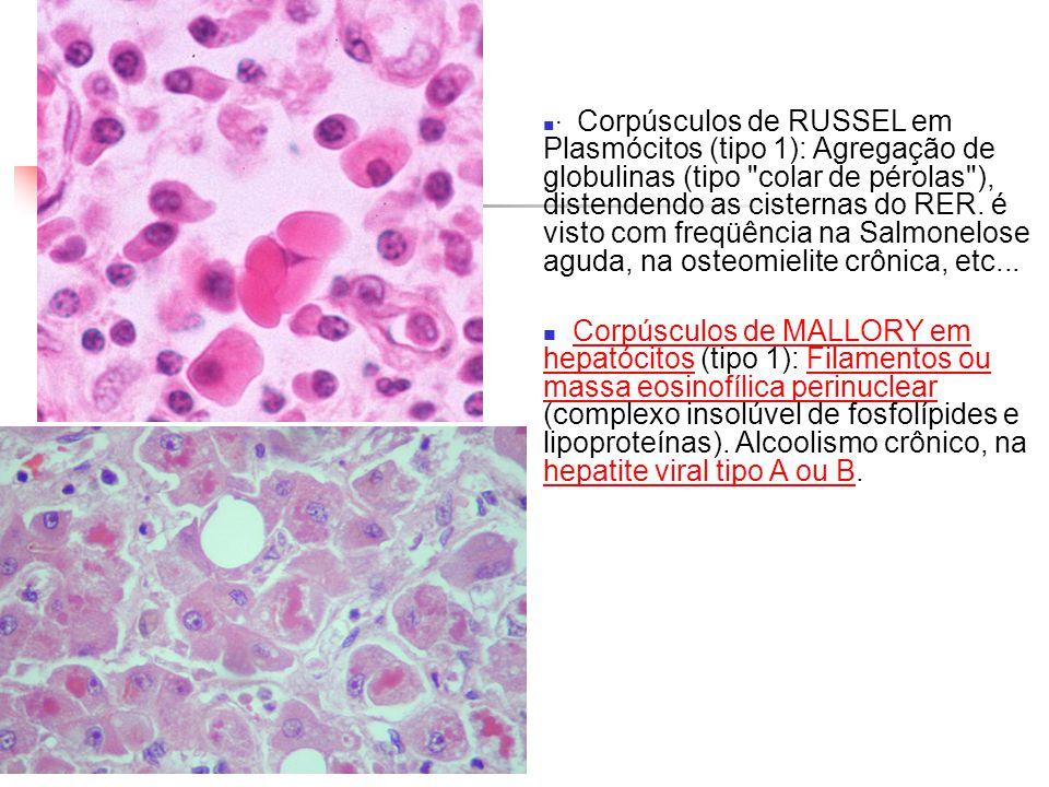 · Corpúsculos de RUSSEL em Plasmócitos (tipo 1): Agregação de globulinas (tipo colar de pérolas ), distendendo as cisternas do RER. é visto com freqüência na Salmonelose aguda, na osteomielite crônica, etc...