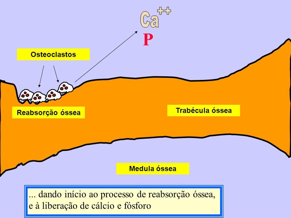 Ca ++ P. Osteoclastos. Trabécula óssea. Reabsorção óssea. Medula óssea.