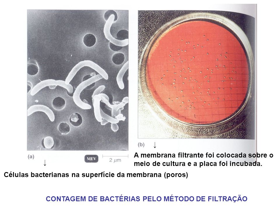 ↓ A membrana filtrante foi colocada sobre o. meio de cultura e a placa foi incubada. ↓ Células bacterianas na superfície da membrana (poros)