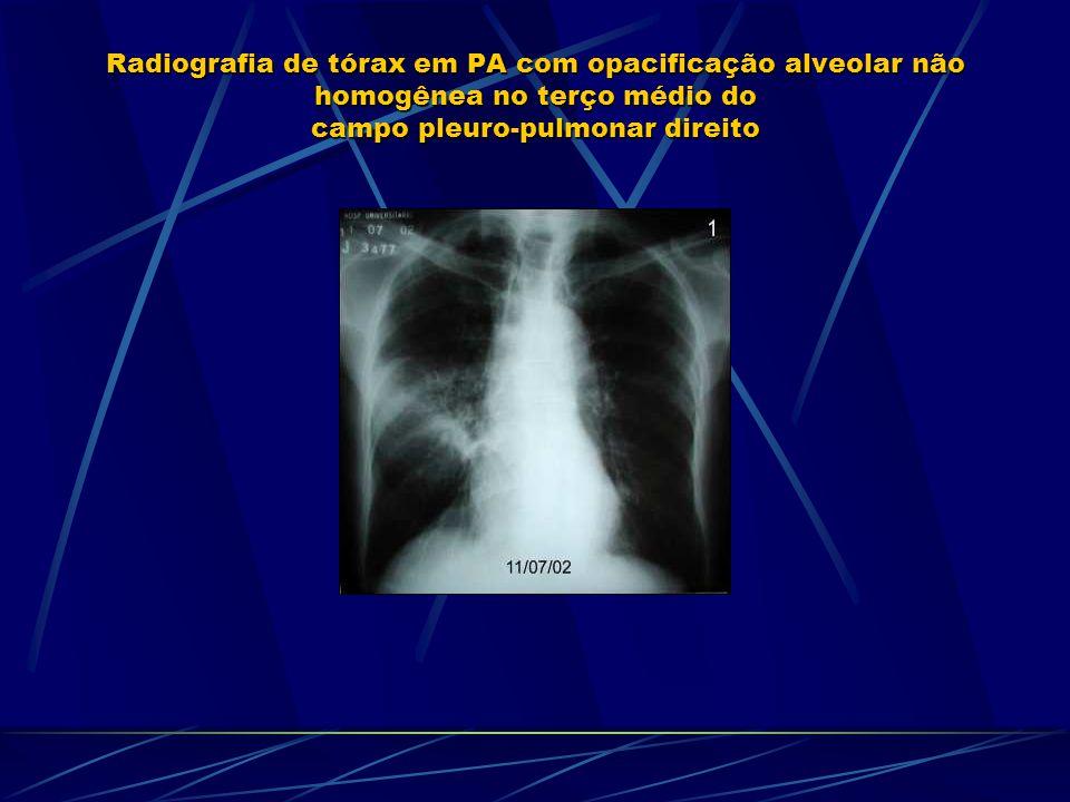 Radiografia de tórax em PA com opacificação alveolar não homogênea no terço médio do campo pleuro-pulmonar direito