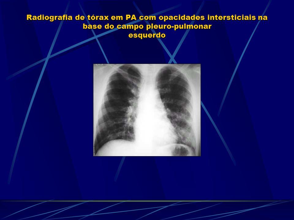 Radiografia de tórax em PA com opacidades intersticiais na base do campo pleuro-pulmonar esquerdo