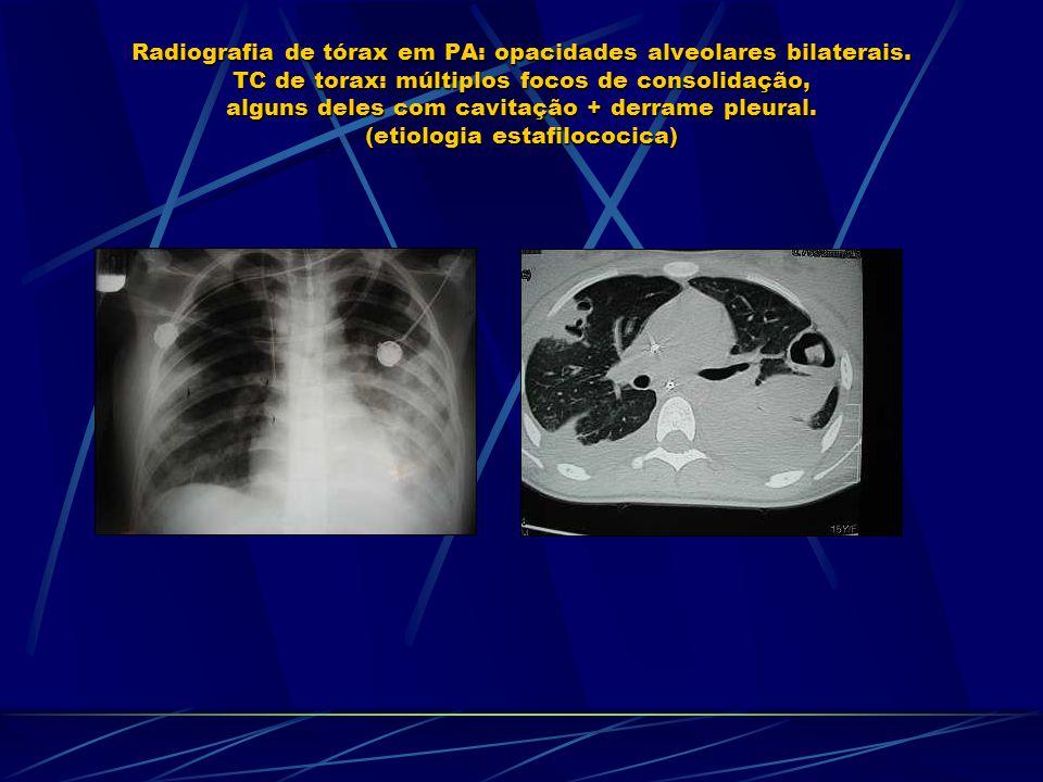 Radiografia de tórax em PA: opacidades alveolares bilaterais