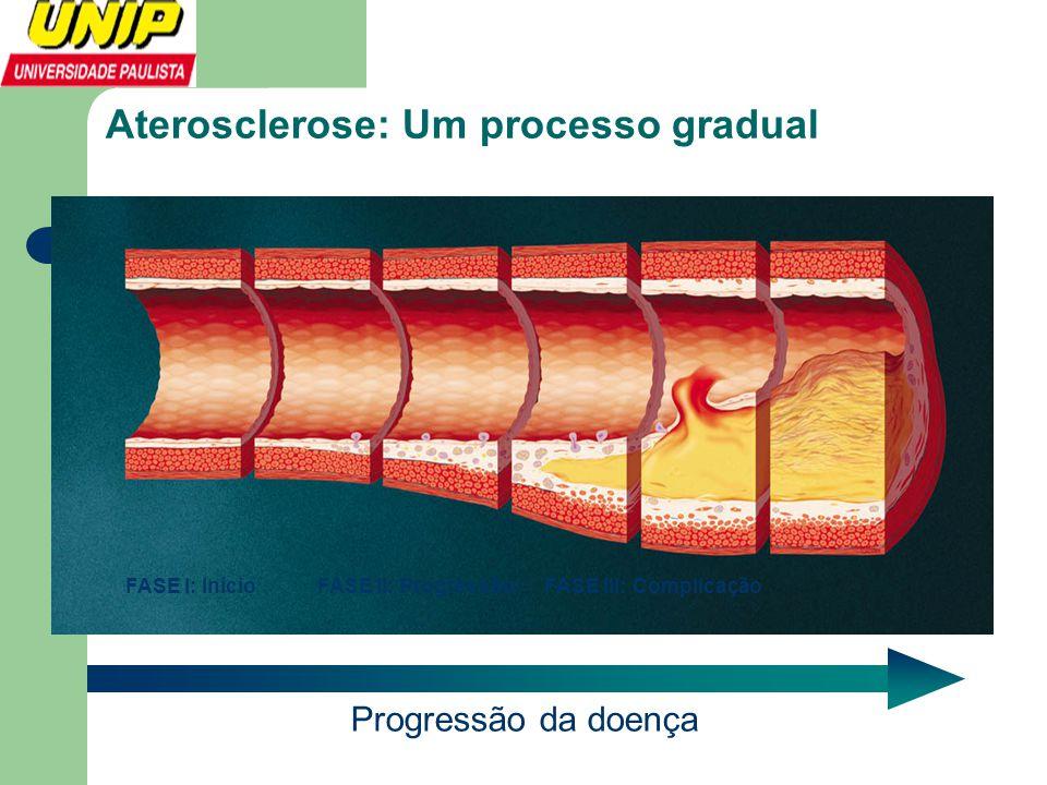 Aterosclerose: Um processo gradual