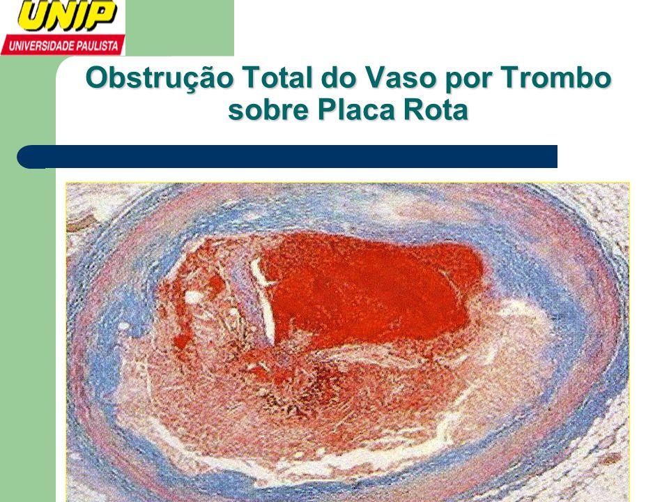 Obstrução Total do Vaso por Trombo sobre Placa Rota