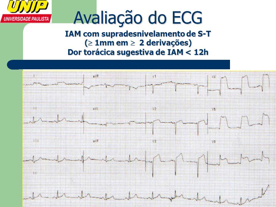 Avaliação do ECG IAM com supradesnivelamento de S-T