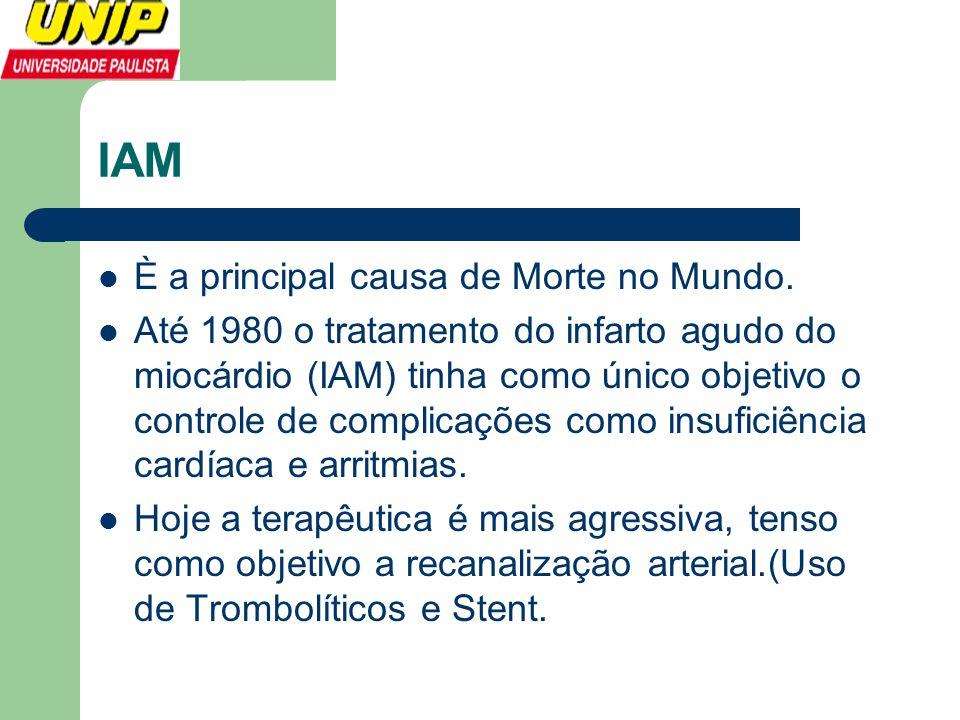 IAM È a principal causa de Morte no Mundo.