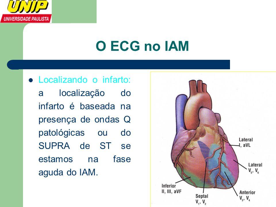 O ECG no IAM