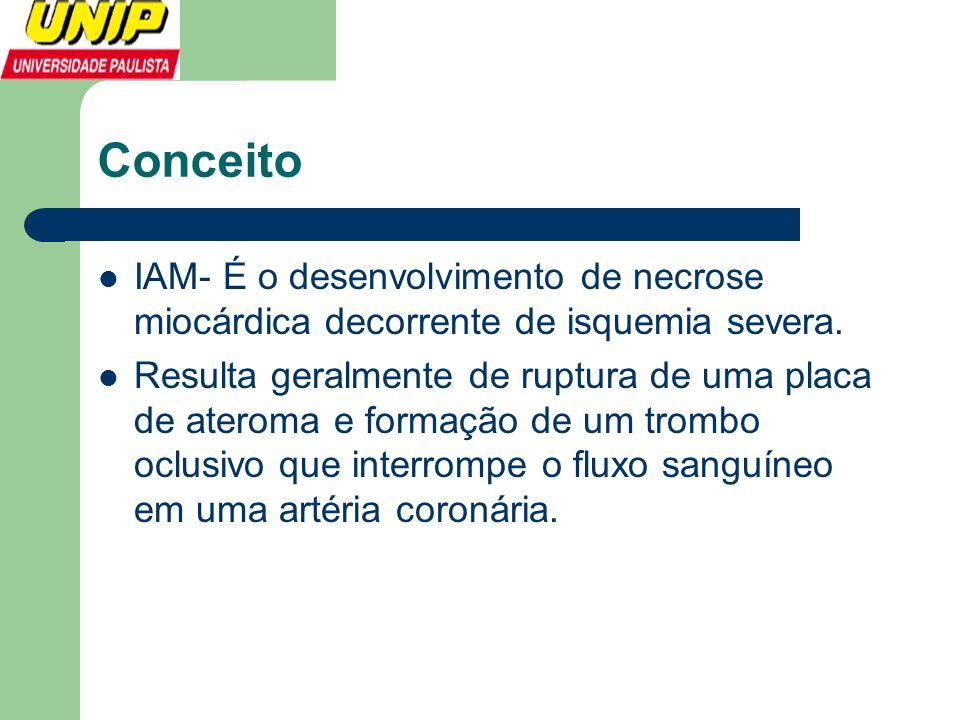 Conceito IAM- É o desenvolvimento de necrose miocárdica decorrente de isquemia severa.