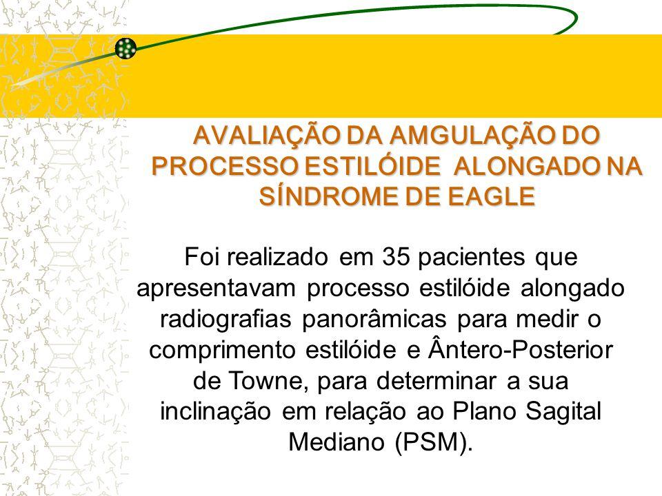 AVALIAÇÃO DA AMGULAÇÃO DO PROCESSO ESTILÓIDE ALONGADO NA SÍNDROME DE EAGLE