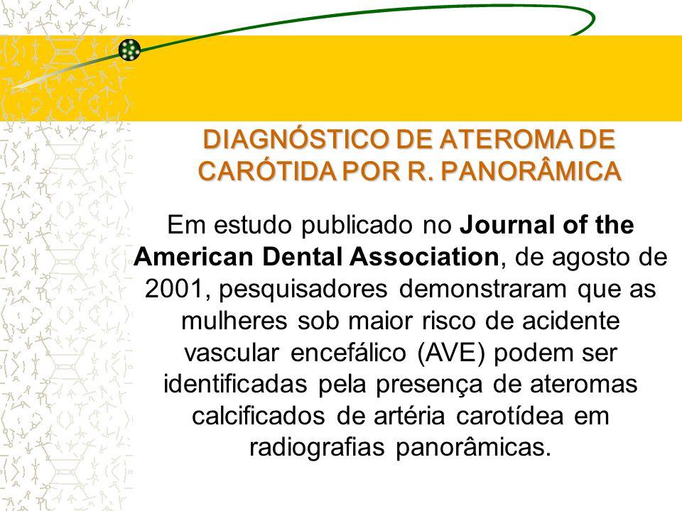 DIAGNÓSTICO DE ATEROMA DE CARÓTIDA POR R. PANORÂMICA