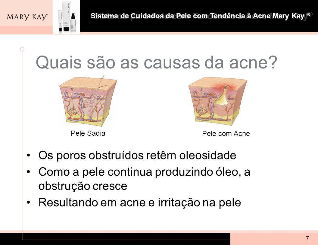 Quais são as causas da acne
