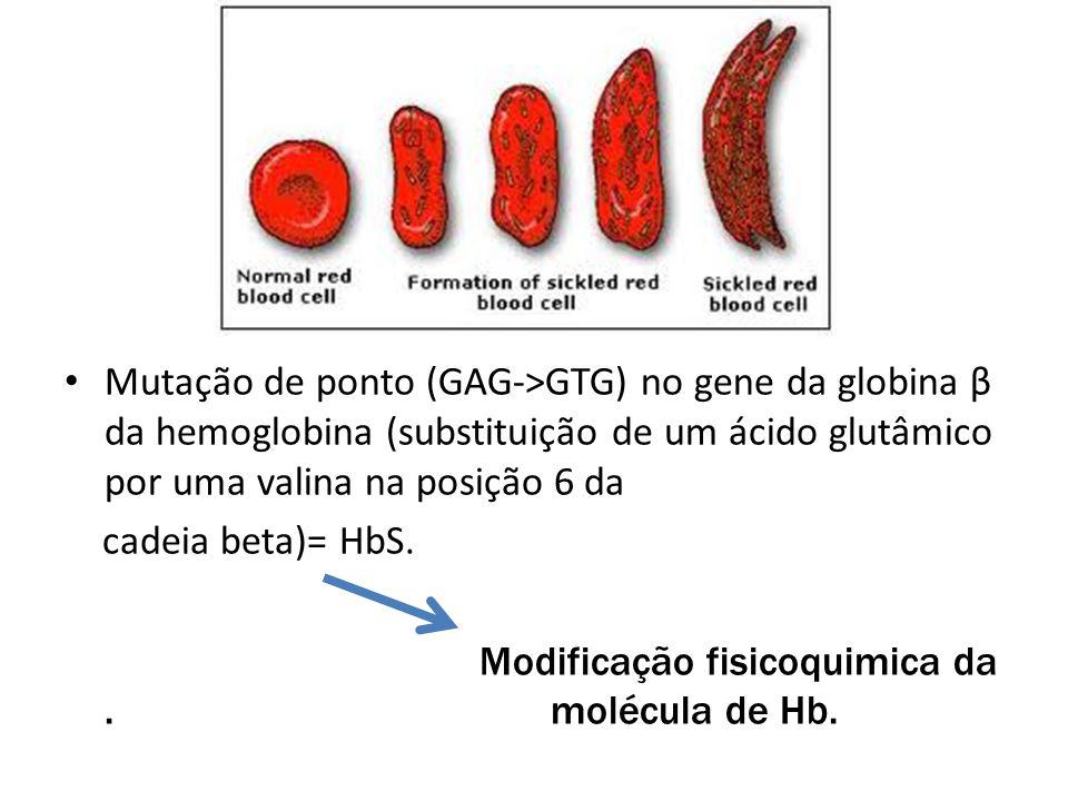 Mutação de ponto (GAG->GTG) no gene da globina β da hemoglobina (substituição de um ácido glutâmico por uma valina na posição 6 da