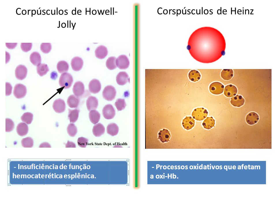 Corpúsculos de Howell-Jolly