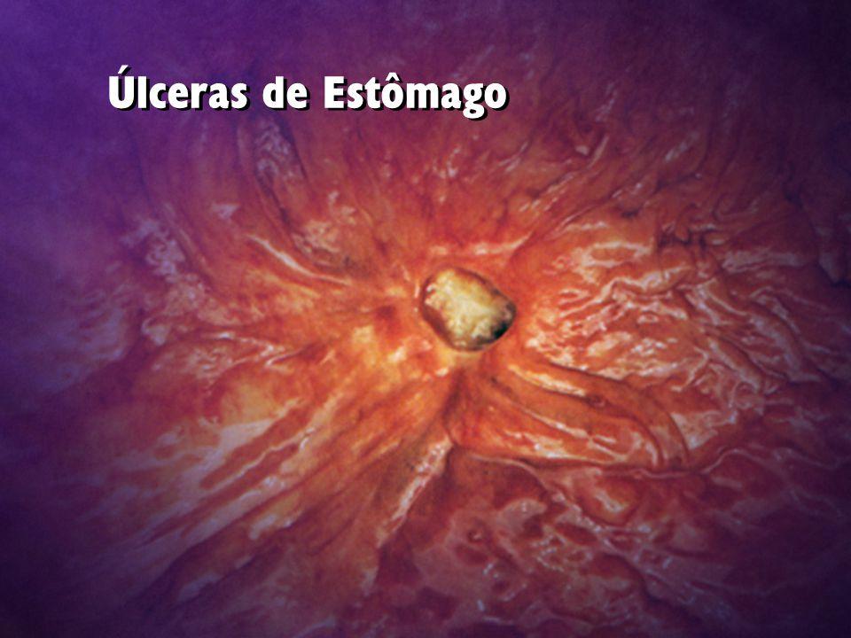 Úlceras de Estômago