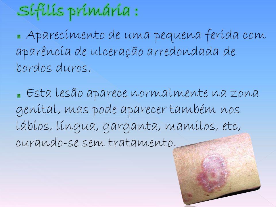 Sífilis primária : Aparecimento de uma pequena ferida com aparência de ulceração arredondada de bordos duros.