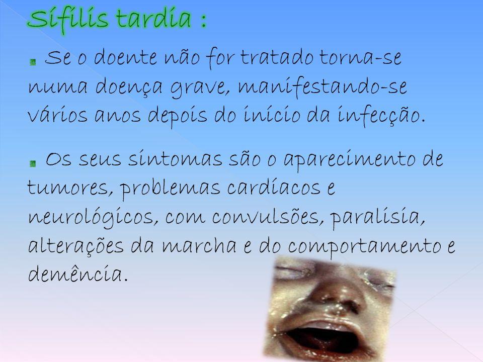 Sífilis tardia : Se o doente não for tratado torna-se numa doença grave, manifestando-se vários anos depois do início da infecção.