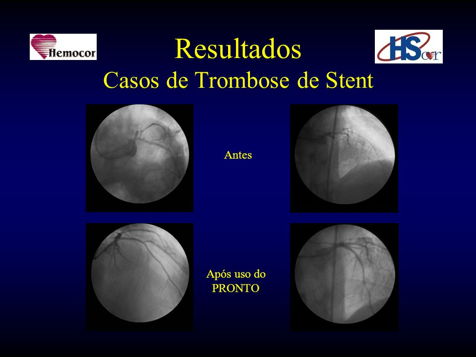 Resultados Casos de Trombose de Stent