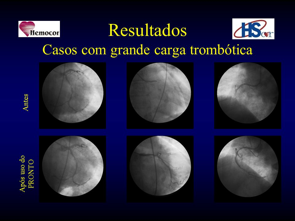 Resultados Casos com grande carga trombótica