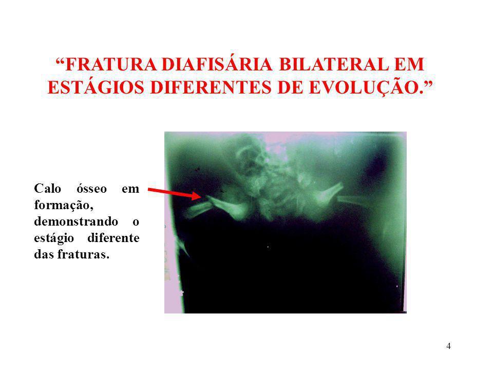 FRATURA DIAFISÁRIA BILATERAL EM ESTÁGIOS DIFERENTES DE EVOLUÇÃO.
