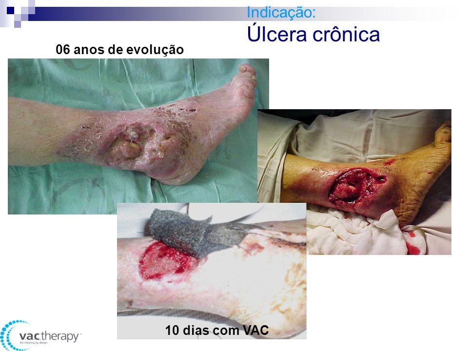 Indicação: Úlcera crônica