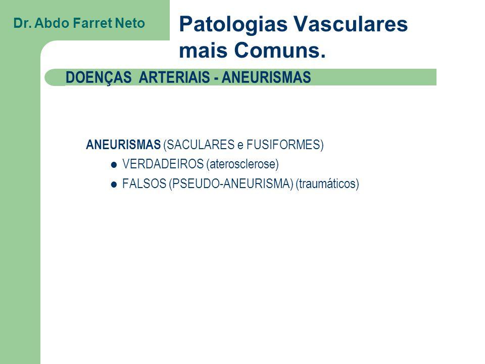 Patologias Vasculares mais Comuns.