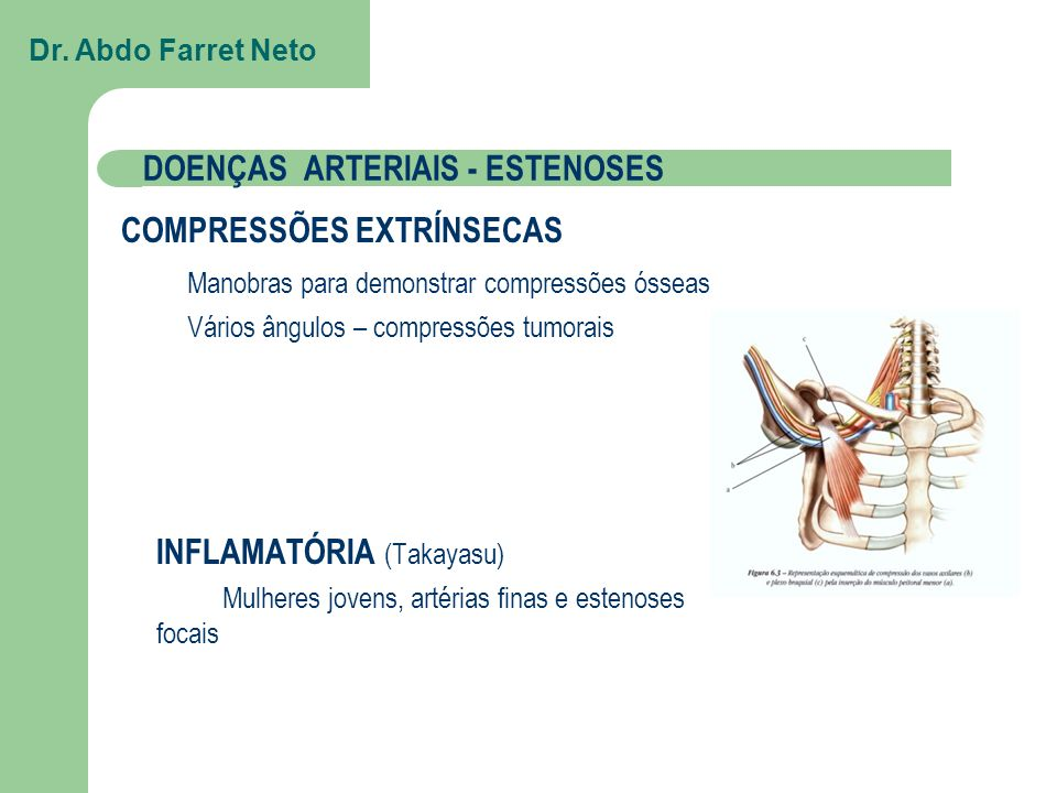 DOENÇAS ARTERIAIS - ESTENOSES