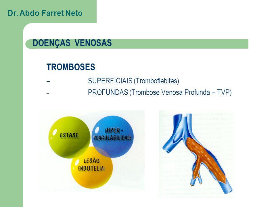 SUPERFICIAIS (Tromboflebites)