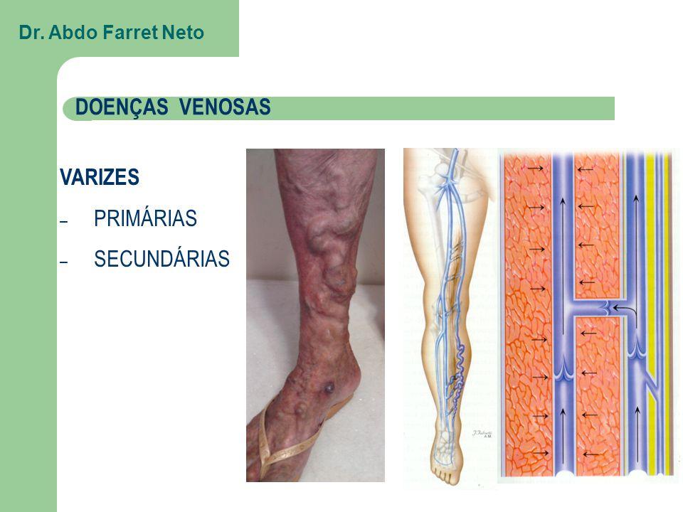 Dr. Abdo Farret Neto DOENÇAS VENOSAS VARIZES PRIMÁRIAS SECUNDÁRIAS
