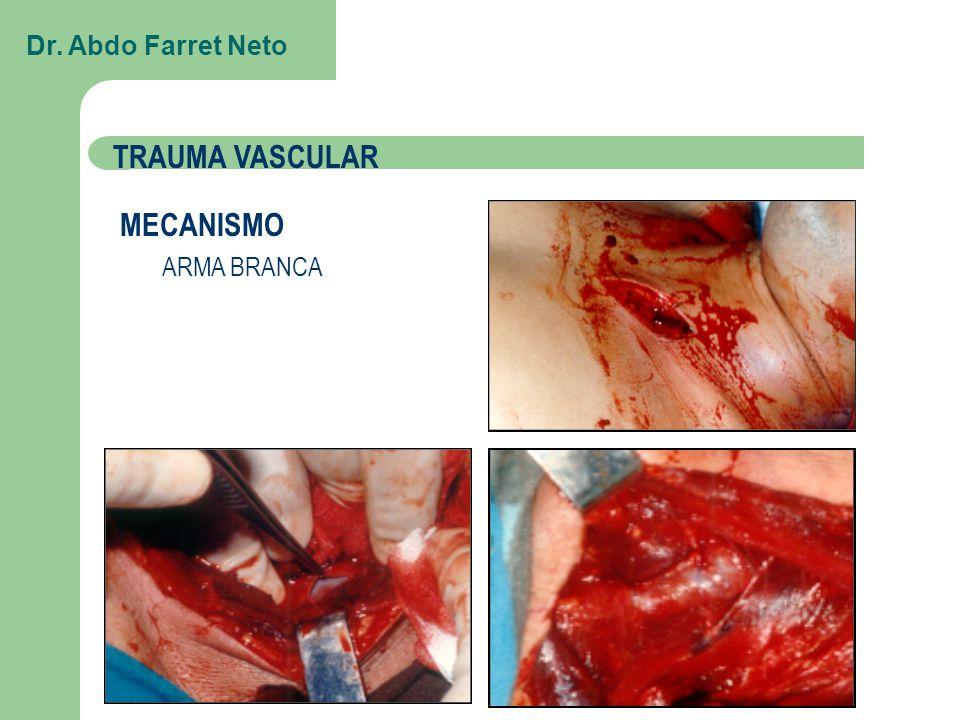 Dr. Abdo Farret Neto TRAUMA VASCULAR MECANISMO ARMA BRANCA