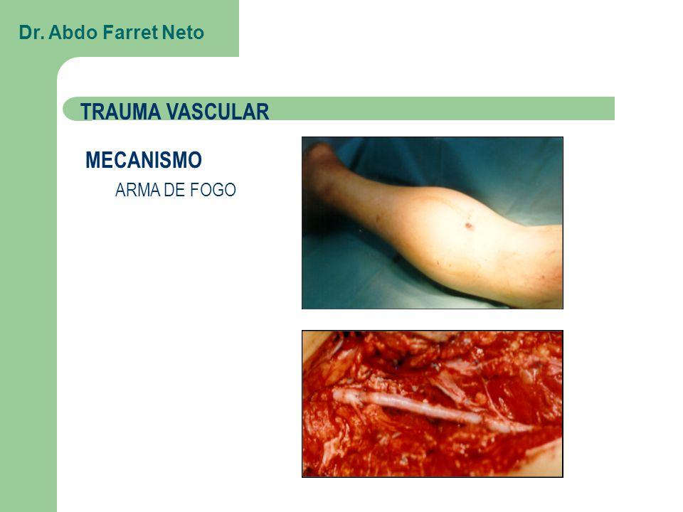 Dr. Abdo Farret Neto TRAUMA VASCULAR MECANISMO ARMA DE FOGO