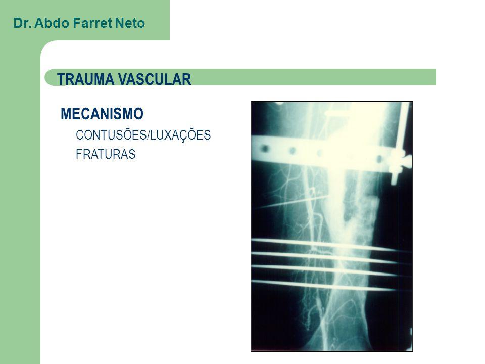 TRAUMA VASCULAR MECANISMO Dr. Abdo Farret Neto FRATURAS