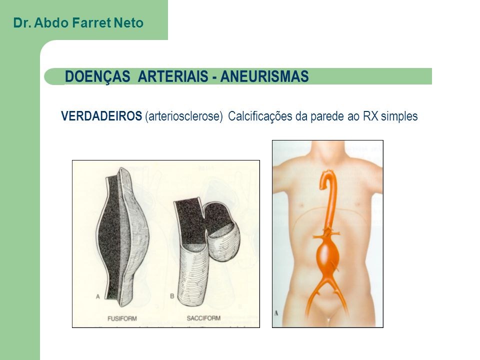 DOENÇAS ARTERIAIS - ANEURISMAS
