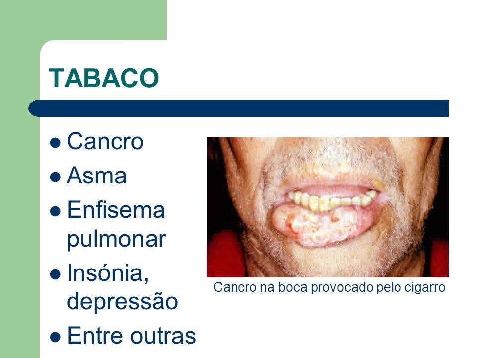 TABACO Cancro Asma Enfisema pulmonar Insónia, depressão Entre outras