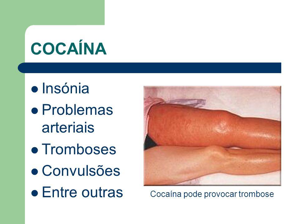 Cocaína pode provocar trombose