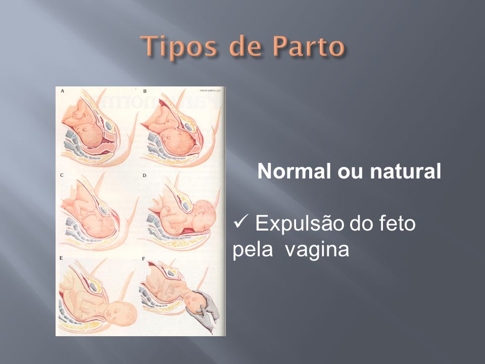 Tipos de Parto Normal ou natural Expulsão do feto pela vagina