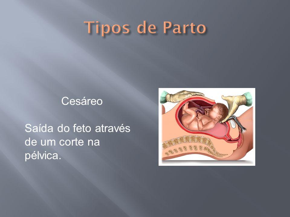 Tipos de Parto Cesáreo Saída do feto através de um corte na pélvica.