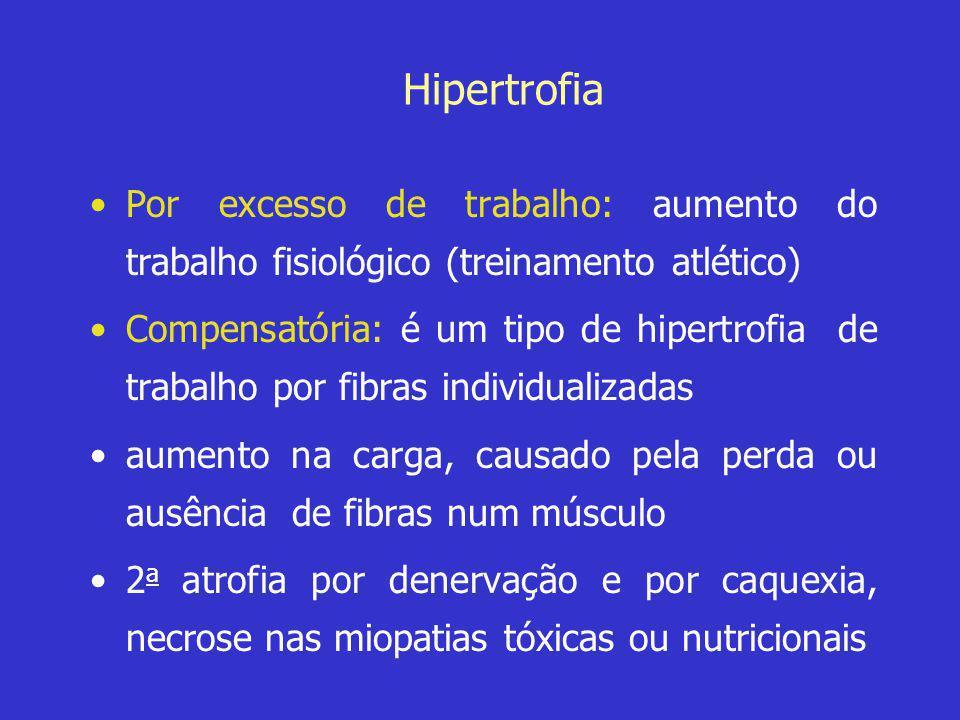 Hipertrofia Por excesso de trabalho: aumento do trabalho fisiológico (treinamento atlético)