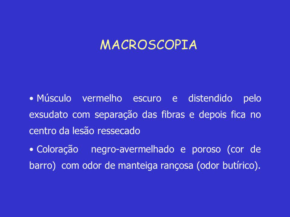 MACROSCOPIA Músculo vermelho escuro e distendido pelo exsudato com separação das fibras e depois fica no centro da lesão ressecado.