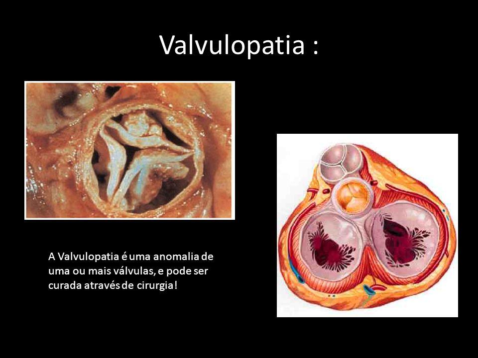 Valvulopatia : A Valvulopatia é uma anomalia de uma ou mais válvulas, e pode ser curada através de cirurgia!