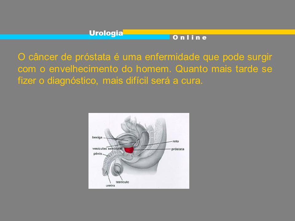 Urologia O n l i n e.