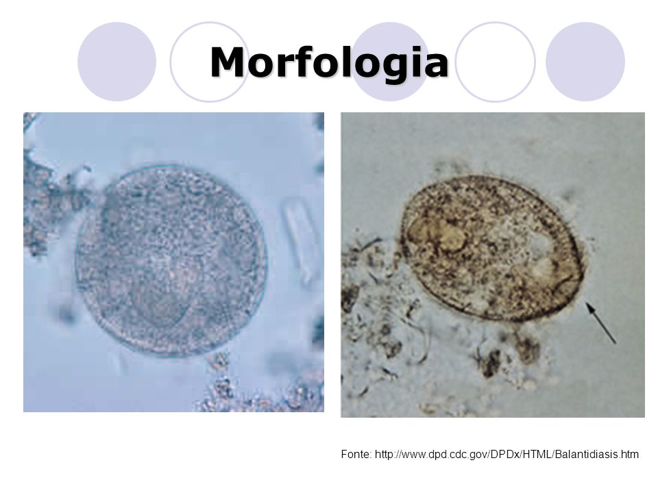Morfologia Fonte: http://www.dpd.cdc.gov/DPDx/HTML/Balantidiasis.htm