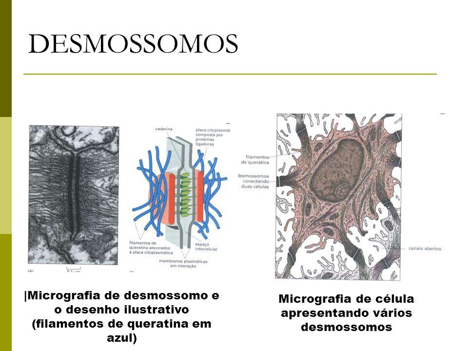 Micrografia de célula apresentando vários desmossomos